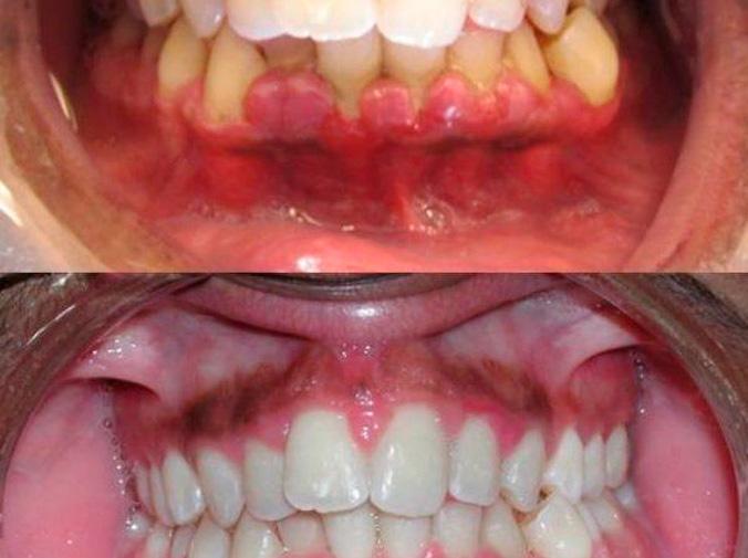 La gingivitis: causa y tratamiento